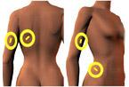 Skinfold spots